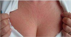 Rugas no pescoço são muito comuns com o passar da idade, já que a pele vai perdendo a elasticidade. Embora não possamos eliminá-las totalmente, é possível reduzir os efeitos que a velhice causa no corpo.