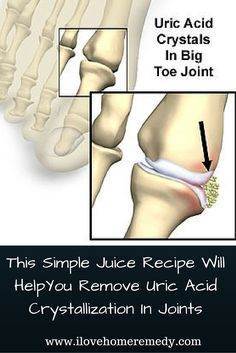 How To Remove URIC Acid From Your Joints.