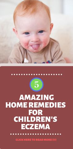 Homeschool Math Printer Projects New York Product Homeopathic Flu Remedies, Home Remedies For Fever, Home Remedies For Eczema, Top 10 Home Remedies, Natural Remedies For Arthritis, Cold Home Remedies, Natural Home Remedies, Health Remedies, Flu Medicine