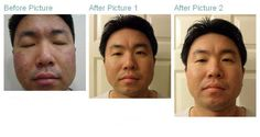 NeriumAD Real Results Images Fine Lines, Wrinkles, Crow's Feet - http://better-health-energy.com/wordpress/2012/05/05/neriumad-results-images-fine-lines-wrinkles-crows-feet/