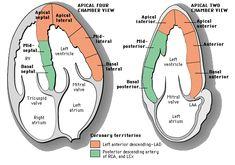 Myocardial segment