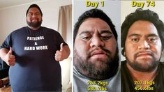 Brave Man Embarks on a Lifesaving Weight Loss Journey Focus At Work, Dry Brushing Skin, Lymph Fluid, The Cramps, Receding Gums, Night Sweats, Colon Cancer, Power Of Positivity, Lymphatic System