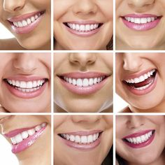 Edward Fritz: The New Health Dental team in Mesa offers patients several teeth whitening options to help you achieve the smile you want. Call today to learn more about professional teeth whitening. Smile Dental, Dental Care, Braces Smile, Teeth Braces, Dental Surgery, Dental Implants, Dental Hygienist, Dental Posters, Dental Bridge