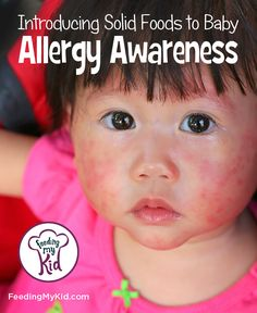 Understanding Baby Food Allergies. Food Allergy Awareness. Find out how and when to introduce solid foods to reduce the chances of your baby having a food allergy in life. #kidshealth #foodallergies #babyfoodallergies