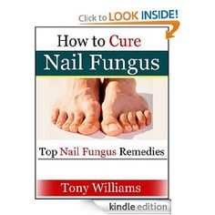 Toenail Fungus Remedies You Need To Try Before Getting The Laser For Toenail…