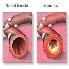 11 Useful Tips As Home Remedies For Bronchitis