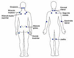 Fibromialgia é uma síndrome dolorosa crônica, não inflamatória, presença de dor musculoes difusa, dor no corpo todo e múltiplos pontos dolorosos sensíveis,
