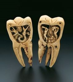 """Artistically designed ivory carving in a molar, which can be separated into two halves of equal size. It opens out into two scenes depicting the infernal torments of toothache as a battle with the """"tooth worm"""". The legend of the """"tooth worm"""" as the cause of toothache originated in Mesopotamia around 1800 B.C. The origin of the tooth worm is to be found in the inscriptions on ancient tablets from 1800 B.C., and from the New Assyrian and Neo-Babylonian periods of 650 and 550 B.C."""