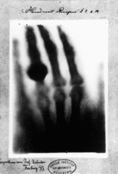One of the earliest X-Ray images, Mrs. Roentgen's hand.  what's crazy too~~> Thomas Edison did many experiments with x-ray on his assistant, who eventually died of radiation poisoning.