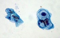 Can a DNA Test for HPV Replace the Pap Smear?