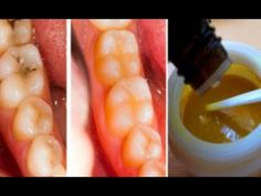 Mis dientes y muelas estaban llenas de caries, hasta que me empecé a unt...