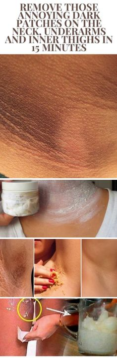 Remove Those Annoying Dark Patches on The Neck, Underarms and Inner Thighs in 15 Minutes