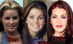 Priscilla Presley Plastic Surgery, Before and After Pictures. #priscillapresley #presley #botox #facelift #plasticsurgery #beforeafter #actress #celebrity