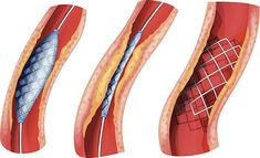"Report Hive Market Research Released a New Research Report of 167 pages on Title "" Global Cardiovascular Stents Market Research Report 2017 ""with detailed Analysis, Forecast and Strategies. Heart Stent, University Of Sciences, Market Research, Science And Technology, Marketing, This Or That Questions, Exceed, News Australia, Medical Conferences"