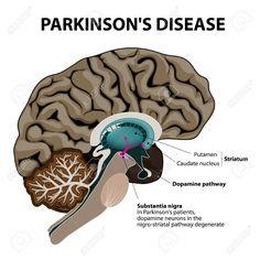Auxilium CBD olie: CDB en Parkinson