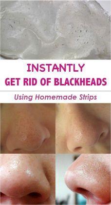Get Rid of Blackheads using Homemade Strips