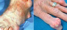 Las personas con dolores en el cuerpo debido a artritis, reumatismo u otras enfermedades de articulaciones, suelen sufrir mucho