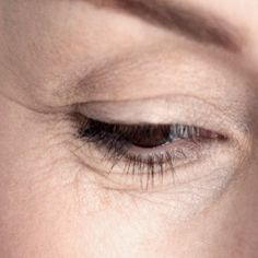 Home Remedies For Eye Wrinkles - Natural Treatments & Cure For Eye Wrinkles | Search Home Remedy
