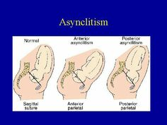 Engagement, synclitism and asynclitism - YouTube