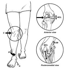 overpronation hip joint internal rotation - Google Search