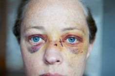 bruise on face - Google Search