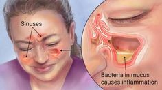 If you have sinus infection and do not want to make of conventional methods of treatment, then you can try