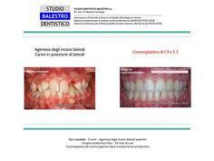Casi clinici ortodontici Agenesia degli incisivi laterali superiori e coronoplastica dei canini http://www.studiodentisticobalestro.com/2012/11/casi-clinici-ortodontici-agenesia-dei.html