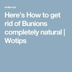 Here's How to get rid of Bunions completely natural  |  Wotips