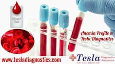 Tesla Diagnostic Center in Hyderabad provides effective Anemia Profile. more on : http://goo.gl/QFl41e