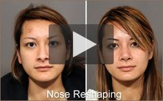 Learn about Facial Plastic Surgeon Dr.CHRISTOPHER KOLSTAD and his Facial Plastic Surgery practice offering Rhinoplasty, Lip Enhancement, and more in San Diego,La Jolla. http://www.drkolstad.com/photo-gallery.html