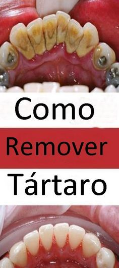 The mineral accumulation on teeth is called tartar. The amount of tartar increases in time and you should take care of it in order to prevent the occurrence of periodontitis. Calendula Benefits, Matcha Benefits, Coconut Health Benefits, Tomato Nutrition, Stomach Ulcers, Ketogenic Diet For Beginners, Healthy Oils, Healthy Teeth, Oral Hygiene