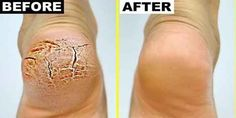 Grandma Told Me This Trick. It Healed My Cracked Heels In Just 1 Night (Grandma Told Me This Trick. It Healed My Cracked Heels In Just 1 Night) Here you can Heal Cracked Heels, Cracked Feet, Tips Belleza, Feet Care, Dead Skin, Skin Care Tips, Baking Soda, Health And Beauty, Healthy Life