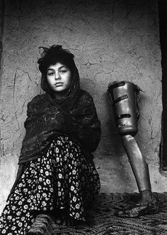 VICTIM OF WAR IN AFGHANISTAN    (SOURCE: CASABLANCASOLDIER, VIA CASABLANCASOLDIER)  #prosthetics #legs #Kandahar