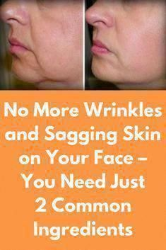 Tighten Stomach, Tighten Loose Skin, Skin Firming Lotion, Skin Bumps, Sagging Skin, Face Skin Care, New Skin, Skin Tightening, Skin Treatments