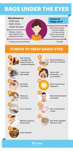 How to Get Rid of Bags Under Eyes - Dr.Axe http://www.draxe.com #health #holistic #natural
