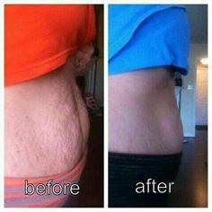 I am SOLD! Many of you mother's truly understand this battle of belly fat! Before and After using NeriumFirm!! Amazing!!  www.facebook.com/irelandredheadtuesday http://DeafBeauty.Nerium.com