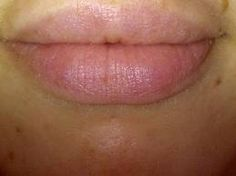 Best Permanent Lip Plumper - Visit http://www.pricecanvas.com/health/lip-plumper/ For Lip Plumper.