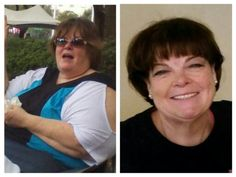 Her testimonial  CARYN C  I've come a long way baby! On the left is 2011 and on…