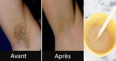 Retirez les poils des aisselles en 2 minutes seulement ! | Santé+ Magazine - Le magazine de la santé naturelle