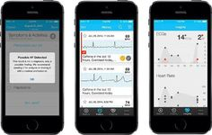 Having received FDA clearance In August, AliveCor has released a new version of the app for its Heart Monitor that is able to automatically detect atrial fibrillation. The Heart Monitor snaps onto the back of smartphones and functions as a one lead ECG, with recordings instantaneously displayed on the phone's screen. The new version of the app is able to notice certain irregular heart beats to immediately notify the patient. #afib