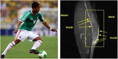 Villarreal's Giovani dos Santos is still hoping to earn a spot on #Mexico's World Cup team, but he is currently sidelined by #ElTri until he recovers from a calf injury. Find similar #calfinjuries online at http://insideinjuries.com/category/calf/ #DosSantos #WorldCup2014