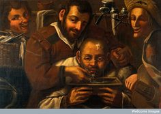 Barber-surgeons operating on a boil on a man's forehead. In the style of Miguel March (1633-1670)