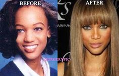 Tyra Banks Nose Job  caution with some photos can have makeup on to slum the nose as Try a does here. I do you think she did get rhino plasty