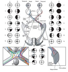 visual field lesions More