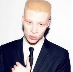Shaun Ross First ever black male Albino Model Shaun Ross, Most Beautiful People, Beautiful Men, Albino Model, Black History Month, Man Crush, Black Men, Eye Candy, Celebs