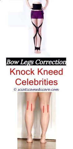 Ricket and Bow Legged Treatment