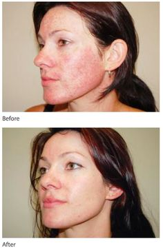 Intense Pulsed Light (IPL) Before and after Photo