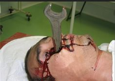 Top 7 Fatal Injuries That People Survived