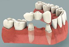 Dental bridges also known as fixed partial denture, literally bridge the gap created by one or more missing teeth. Tooth bridge cost in thangams dental implant center, Chennai is very affordable.