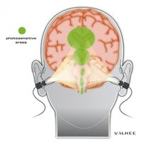 Valkee 2 - Baladeur lumineu Easy to set up anywhere  La luminosité intense vers les régions photosensibles du cerveau via les conduits auditifs ...